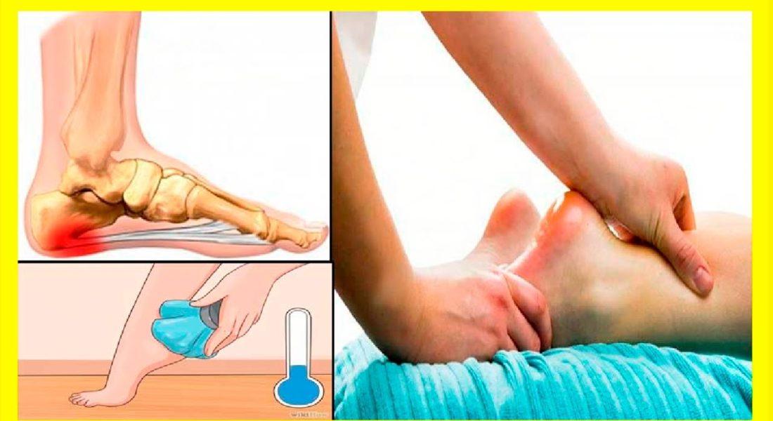 Espolón calcáneo: síntomas y tratamiento
